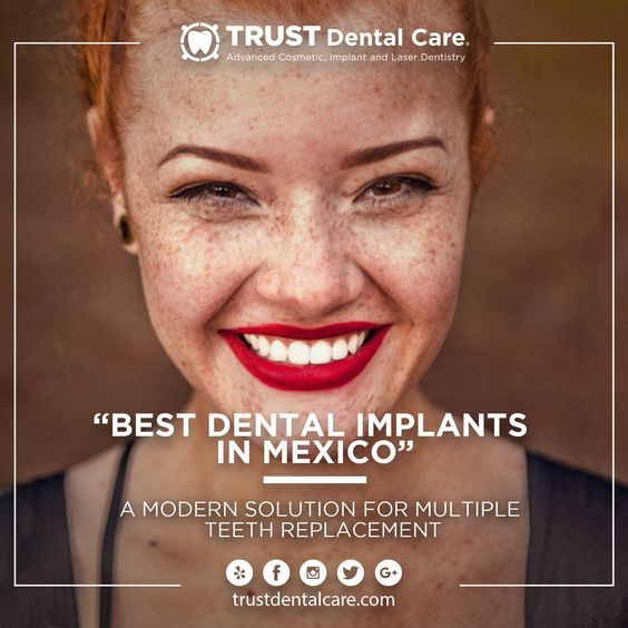 Best Dentist In Tijuana Mexico Trust Dental Care Tijuana Dentist Dental