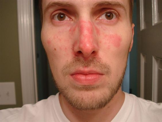 Suffer from red, blotchy, irritated skin on your face? There is a really good chance you have whats known as Seborrheic Dermatitis. Below is how you can get rid of it overnight.