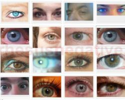 Why are hazel eyes so frequent among rh negatives?
