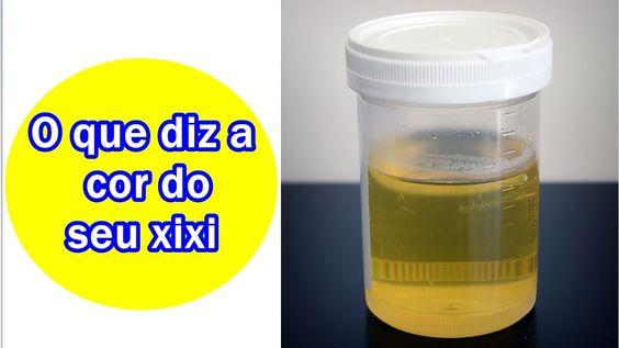 O que nos diz a cor da Urina ?? Analisar Pode até salvar-lhe a vida.