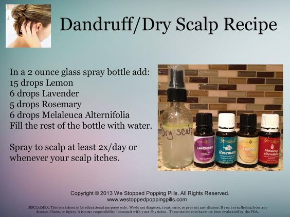 Dandruff / Dry Scalp Recipe  www.westoppedpoppingpills.com: Essential Oils Itchy Scalp, Essential Oil Dry Scalp, Essential Oil Dandruff, Young Living Essential Oils, Essentials Oils, Essential Oils Dandruff, Oil Recipes, Living Oils, Essential Oil Scalp Psoriasis