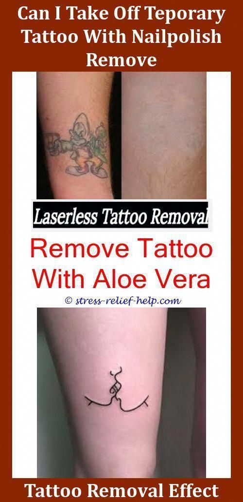 Tattoos Removal How To Remove Industrial Tattoo Shop Earrings How Is Tattoo Removal Done Did Sal Get His Tattoo Removal Cost Laser Tattoo Laser Tattoo Removal