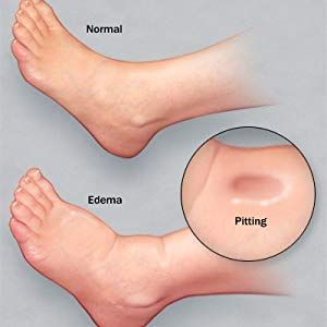 How To Reduce Leg Swelling Naturally In Kidney Failure Dialysis Kidney Disease Kidney Failure