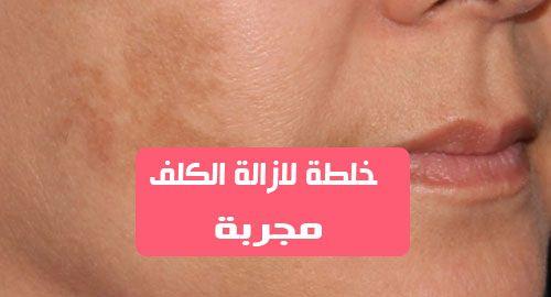 الكثير من النساء يبحثون عن خلطة لازالة الكلف مجربة الكلف هو نوع من الأمراض الجلدية ويعرف عموما بأنه زيادة في التصبغ وينتشر بين النساء اكثر من الرجال تصاب به م