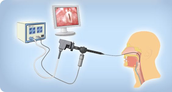 Flexible Endoscopic Evaluation Of Swallowing Fees  Slp
