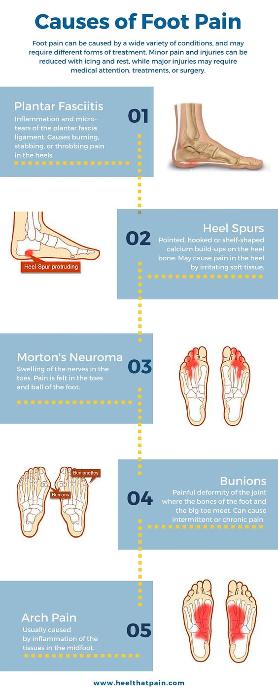 Foot pain chart: Do you know what's causing your foot pain? It may be one of a number of conditions: plantar fasciitis, heel spurs, bunions. Click to learn more about foot pain conditions.: