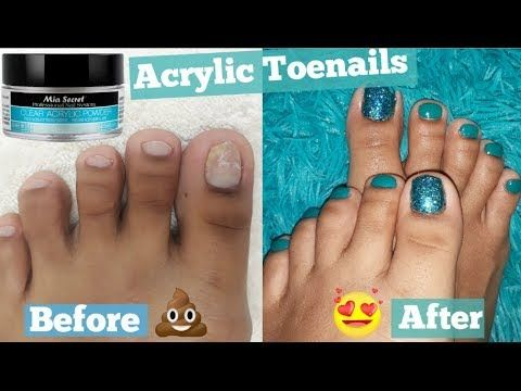 Foot Transformation How I Extend My Short Toenails Using Acrylic Without Tip Pedicure At Home Youtu Toe Nails Acrylic Nails At Home Cotton Candy Nails