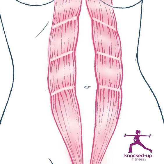 Best Exercises for Diastasis Recti - Knocked-Up Fitness