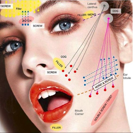 Thread Lift are one of the most popular and highly effective non-surgical means to lift & tighten loose, sagging skin tissues as well dissolve small areas of fat on the lower face and body. PDO is a synthetic fibre widely used in areas of medicine such as general surgery and cardiology. In aesthetics, the threads help to lift sagging skin as well as stimulate new collagen - your own natural collagen.