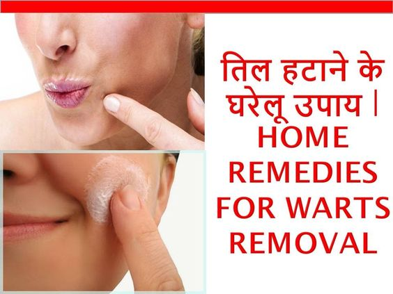Home Remedies For Warts Removal तिल हटाने के घरेलू उपाय | How To Remove ...