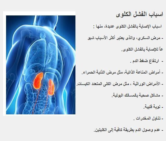 اسباب الفشل الكلوى اسباب الإصابة بالفشل الكلوى عديدة منها مرض السكري والذى يعتبر أكثر الأسباب شيو عا للإصابة بالفشل الكلوى ارتفاع ضغط الدم أمراض