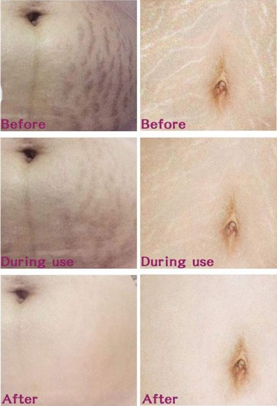 Mango Stretch Mark Cream Stretch Marks Stretch Mark Removal