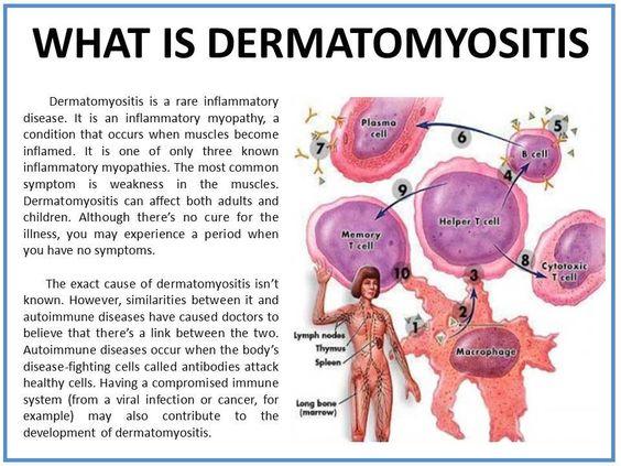 Dermatomyositis     https://www.facebook.com/CassandrasJourneywithJDM?ref=stream
