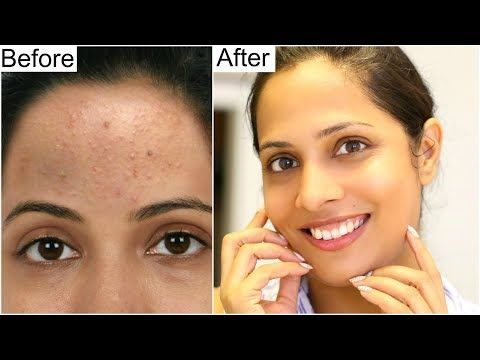 1 Best Skincare Routine For Crystal Clear Skin Shruti Arjun