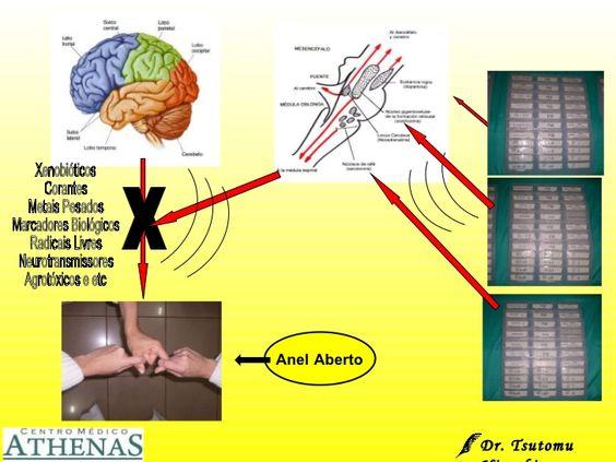 x Xenobióticos Corantes Metais Pesados Marcadores Biológicos Radicais Livres Neurotransmissores Agrotóxicos e etc Anel Abe...