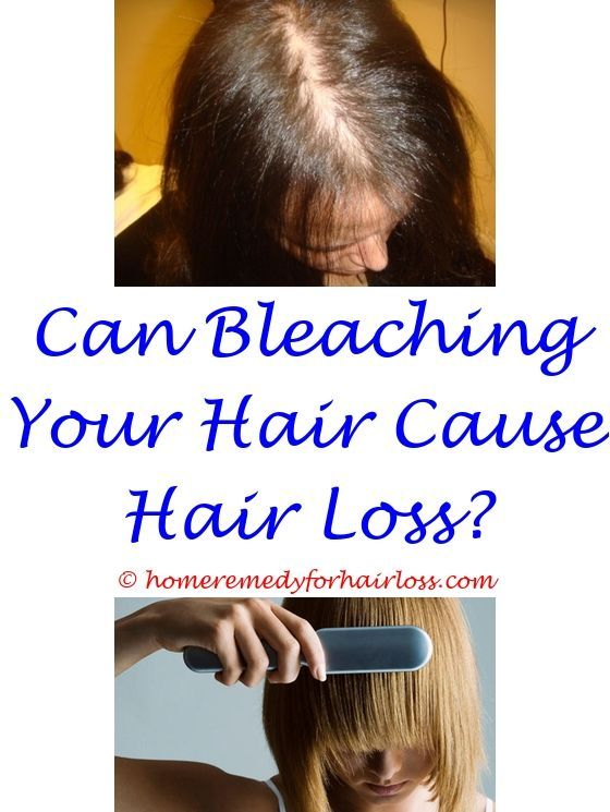 Hair Loss Canine Skin Allergies Hair Loss Dog Food To Stop Hair