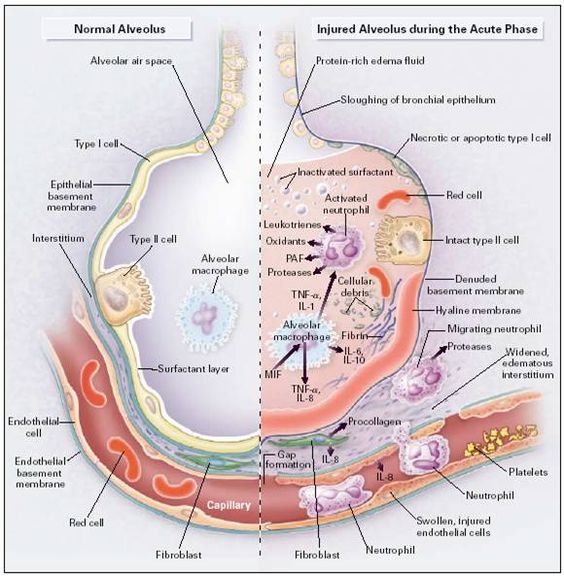 the causes characteristics and complications of the severe acute respiratory syndrome What is severe acute respiratory syndrome (sars) what is the cause severe acute respiratory syndrome common respiratory tract infections complications.