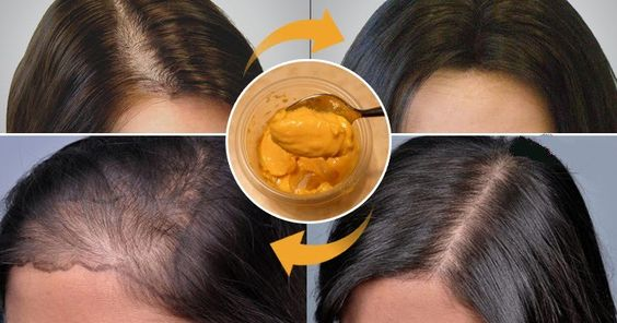 Now Grow Your Hair At Home And Leave All Doctors With Open Mouth - Healthy World Recipes