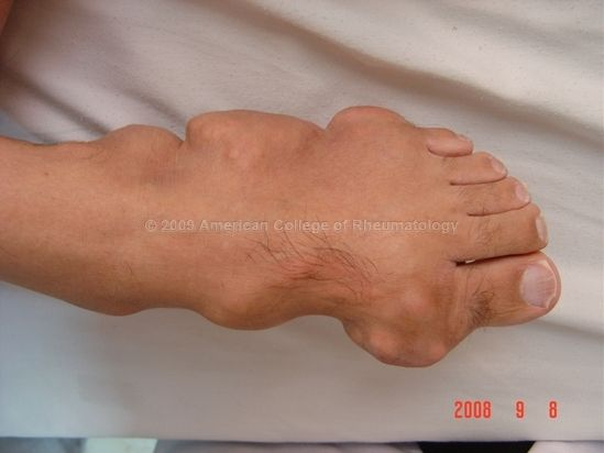 how to reduce uric acid in urdu high uric acid can cause arthritis what food cause high uric acid