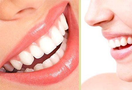 ¡¡Obtenga el blanco deseado!! Bs. 300 en vez de Bs. 650 por limpieza dental + blanqueamiento dental garantizado en Clarident