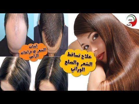أحسن ما جربت لشعري علاج تساقط الشعر وعلاج الصلع الوراثي و انبات الشعر ب Puj