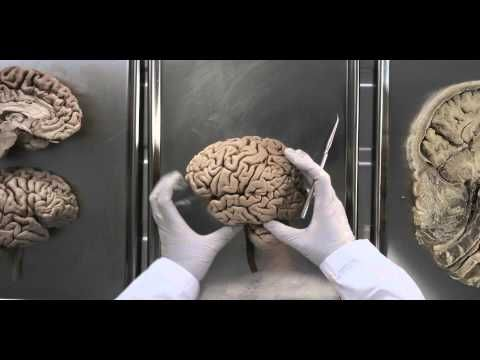 What a fun way to recap learning about the nervous system!  Ice Ice Baby (nervous system remix)