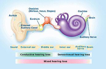 Prevalence of congenital hereditary sensorineural deafness ...