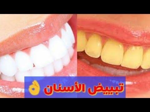تبييض الأسنان إنسي الفلتر Convenience Store Products Convenience Store