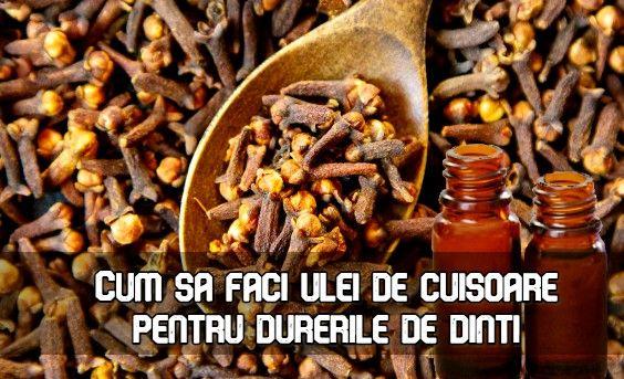cuișoare pentru varice)