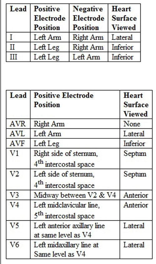 12 Lead Placement And Heart Surface