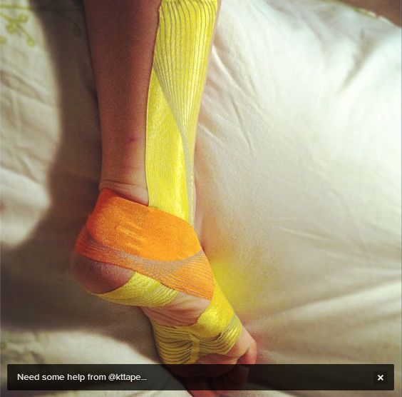 KT Tape Pro for Peroneal Tendonitis