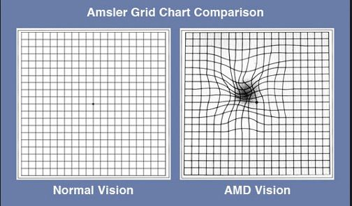 amsler chart: Amsler grid chart comparison macular degeneration pinterest