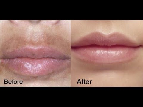 How To Get Rid Of Darkness Around Mouth And Chin