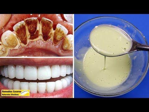 En 2 Minutos Eliminar La Placa Dental Y Blanquear Los Dientes De Forma Natural Usando Esta Mezcla Blanquear Dientes Placas Dentales Beneficios De Alimentos