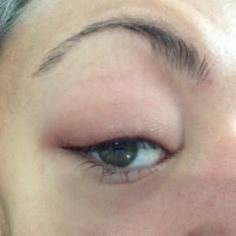 What a Blepharitis Flare-Up Looks Like