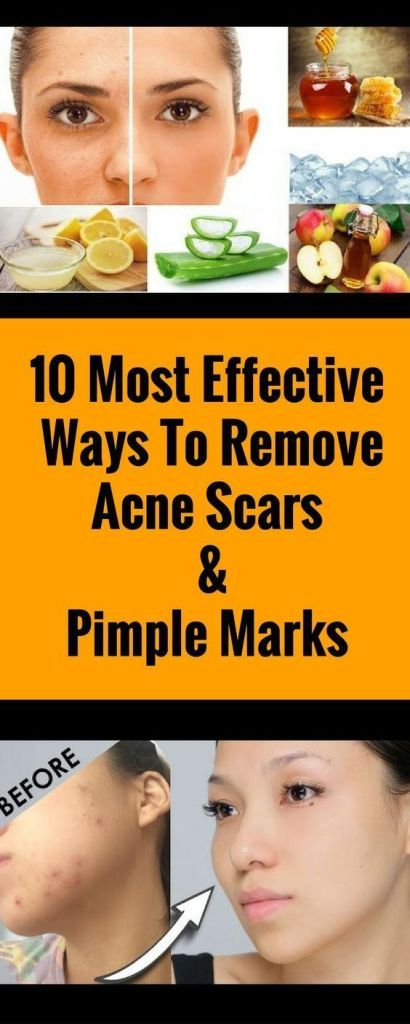 10 Effective Ways To Remove Acne Scars & Pimple Marks....