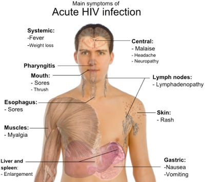 Early symptoms of HIV in men and treatment guidelines