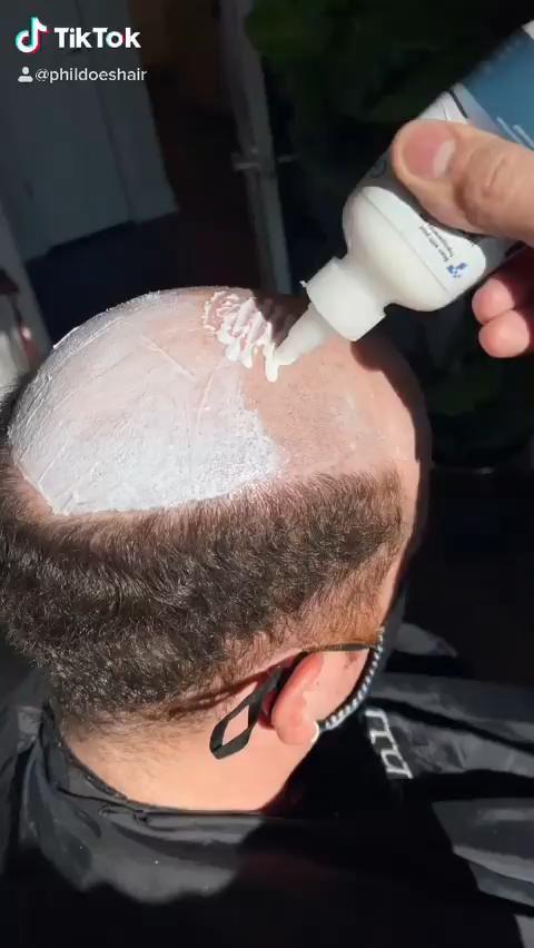 Men S Thin Hair To Solve Lavivid Hair System For Men Video Mens Hairstyles Hair System Hair Loss Treatment