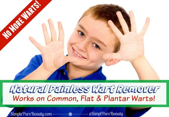 Cure facial warts got some