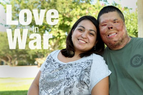 Marine Couple Overcomes Combat Wounds Together