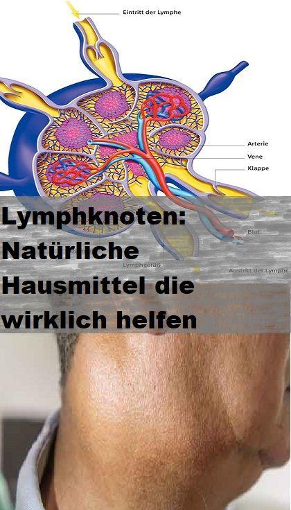 Kinn lymphknoten unterm Lymphknoten unter