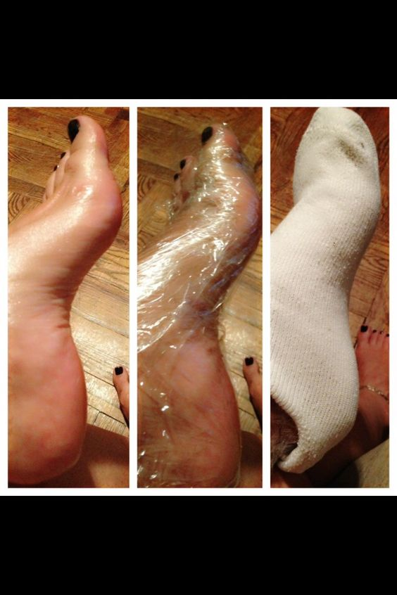 "Ok here's a little ""how to"" to keep your feet soft!   Step 1- exfoliate your feet best you can Step 2- apply thick lotion or Vaseline  Step 3- take Saran Wrap an wrap your foot up!  Step 4- put a sock over the Saran Wrap  Step 5- chill for atleast 15mins  You want to use the Saran Wrap because that will lock the lotion to absorb on your skin rather then just using a sock, which with just a sock the cotton will soak up that lotion quicker then your skin can! #diy #beauty #nails"