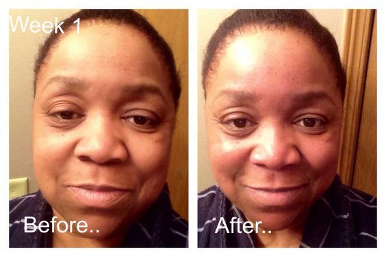 Dry Dull Skin Before Soft Radiant Skin After Skin By Mary Kay Cosmetics Using Mk S Ultimate Miracle Microdermabrasion Mary Kay Mary Kay Mary Kay Cosmetics