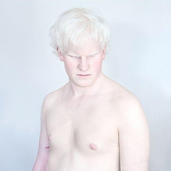 beleza-albina-zupi-5