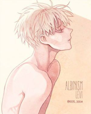 Photophobia [Albino!Levi x Reader | Modern! AU] by ReinaChan22 on DeviantArt