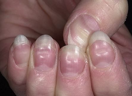 I can't believe how many disease can be identified early just by looking at your fingernails!!! Pinning now so I can find again later!!!
