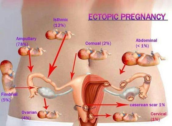 Anatomy test in pregnancy 9166518 - follow4more.info