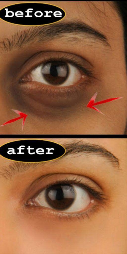 Dark Circles And How To Remove Them Permanently Skincare Skin Facewash Remedies Dark Circle Remedies Spots On Face Dark Circles Under Eyes