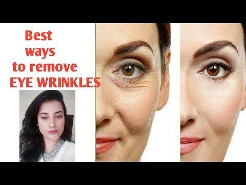 b77eca3da389434653c172663cdc9153 - How To Get Rid Of Eye Wrinkles And Crow S Feet