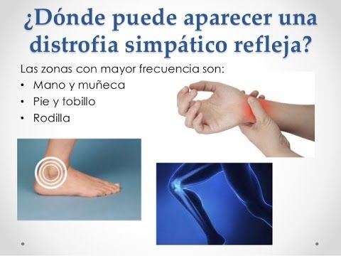 Sindrome De Sudeck Recomendaciones De Rehabilitacion Terapia Consejos Para La Salud Espondilitis Anquilosante